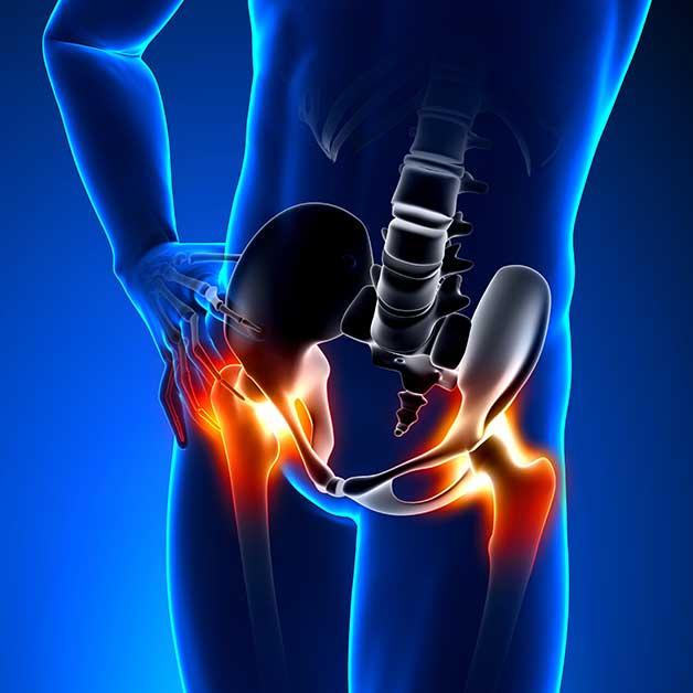 dolor y / o las piernas de la cadera ? Physiokinesitherapy combina ...