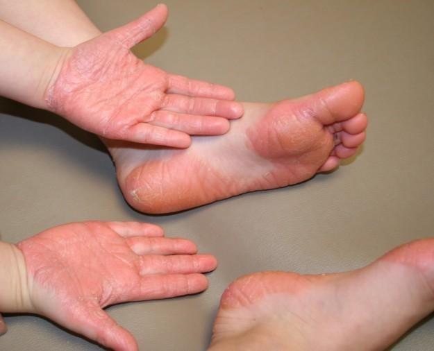 Cura video di eczema